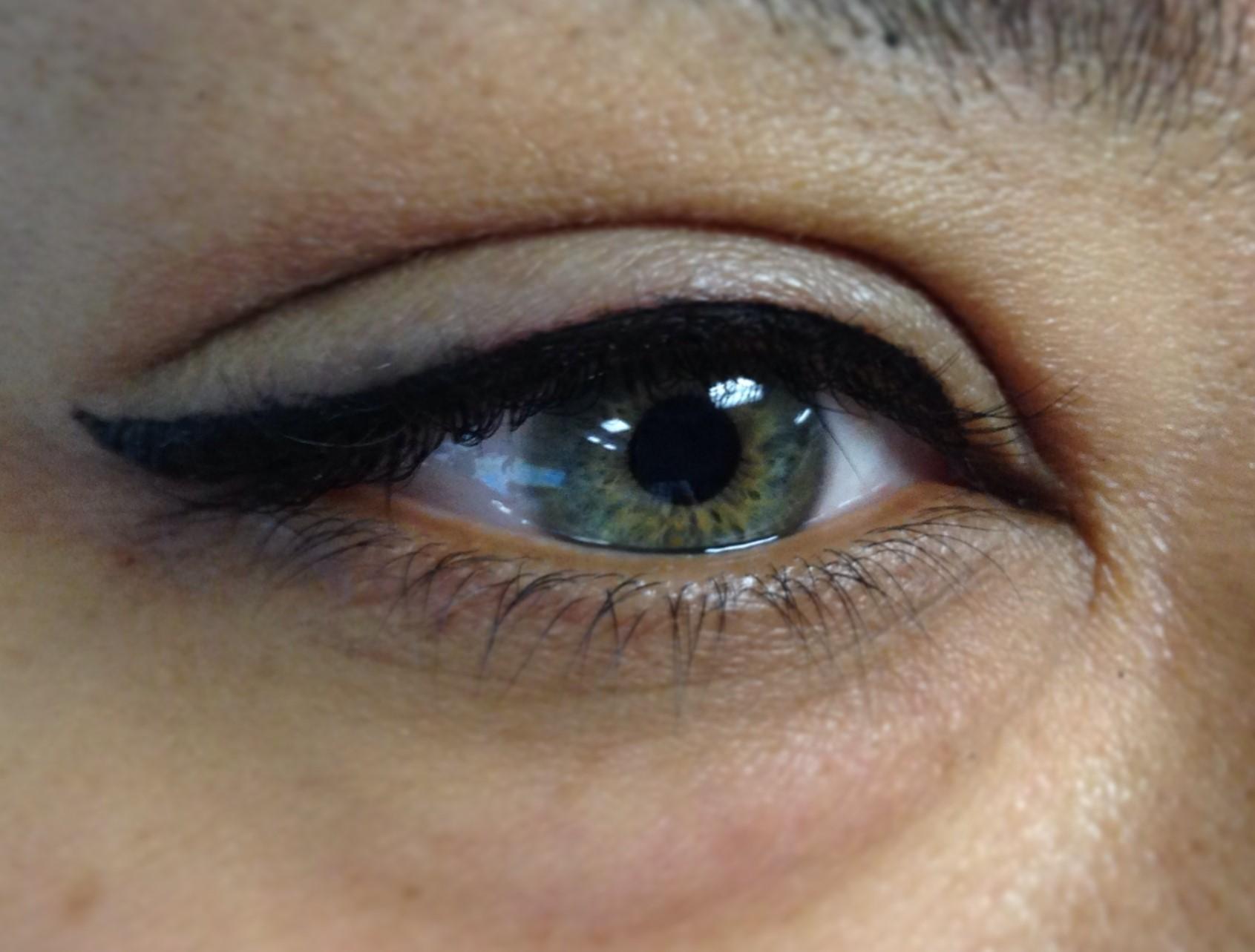eye665