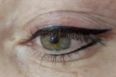 eye320